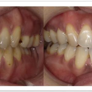 歯を削らずに白くする【ブライトホワイト症例②】