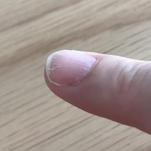 爪のその後(副作用関連?)