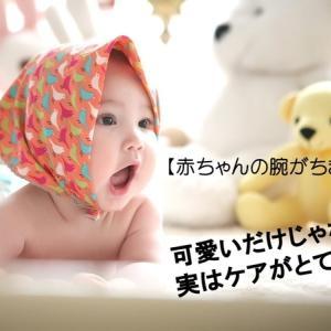 なぜ赤ちゃんの腕はちぎりパンのようにムチムチなの?実はケアがとても大切!親の悩みと解決法を紹介!