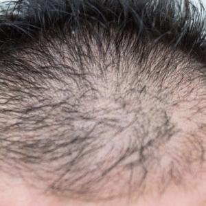 日本の薄毛・ハゲ人口