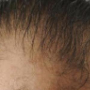 薄毛・ハゲになる原因は?
