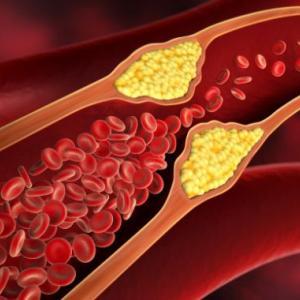 悪玉コレステロールと中性脂肪を下げるには,やはり食事療法は必須