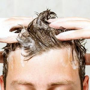 男性の抜け毛や薄毛のお悩み