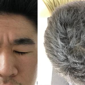 【157週間目】相変わらず、前頭部の髪がたれてくる⤵︎⤵︎⤵︎
