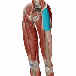 腰痛や膝の痛み!?それってここが原因かも?? 大腿筋膜張筋とは??