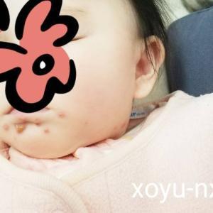生後4ヶ月でヘルペス?首から口周りにかけて赤い発疹・水ぶくれ