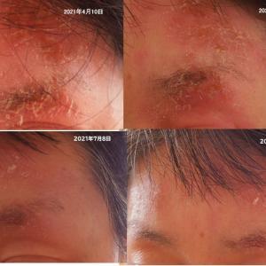 顔に出来たヒドイ皮膚の炎症 自力で治る? 炎症がでなくなりました。
