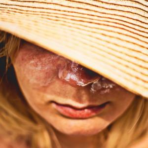 肌のくすみ予防には紫外線を避けて活性酸素の除去が良い!その方法は?
