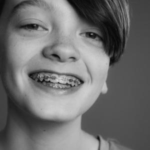 【大人の歯列矯正】社会人で歯並びに悩んでいる方へ|メリットもデメリットもあります