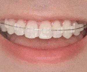 【Part8】インドネシアで歯列矯正してみた|第5回装置調整日