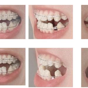 【Part13】インドネシアで歯列矯正してみた|第9回装置調整日