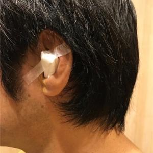 滲出性中耳炎 またもや手術