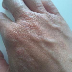 私が手湿疹を治した4つの方法(②断食)