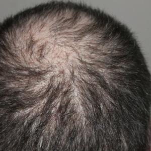 髪が全体的に薄い場合、それはAGA(男性型脱毛症)か!?