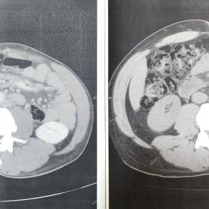 BR療法3クール後の診察。(CT検査結果確認)