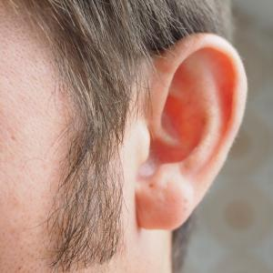 【再】耳に違和感があって指を突っ込んだら悲鳴!!!耳鼻科に駆け込んだ。医師「なんじゃこりゃw」「!!!」【衝撃】
