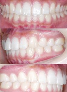 インビザラインやめたほうがいい10の理由= 一矯正歯科医の意見3)プロによる管理がなされていない