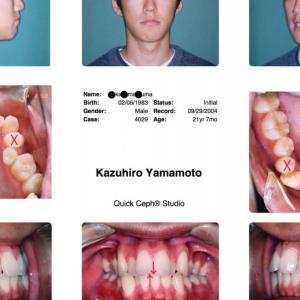 インビザラインやめたほうがいい10の理由= 一矯正歯科医の意見 6) 抜歯して治した症例も見たことはあるが,抜歯空隙も閉じ切ってなくて,不完全であり,長期間の安定性が得られるとはおよそ思えない