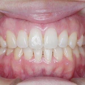 インビザラインやめたほうがいい10の理由= 一矯正歯科医の意見8)専門医会の調査から一般歯科で治っていると言えるのはおよそ10人にひとりかふたり