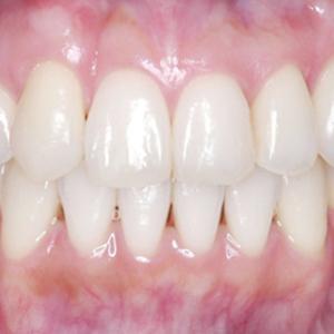 「ひとはまだ本当の矯正治療を知らない!=矯正歯科鎌倉 dentofacoで専門医による価値ある本当の矯正治療で改善可能な点6)歯並びが良くなる=審美的意義」