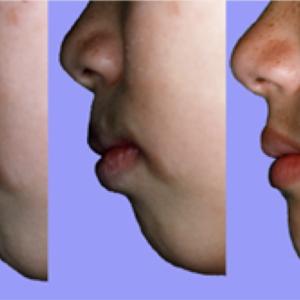 12) 口が閉まるようになり鼻呼吸がしやすくなる