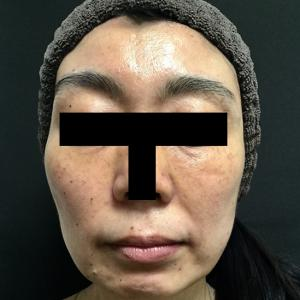 ヒアルロン酸リフトと顎のボトックス
