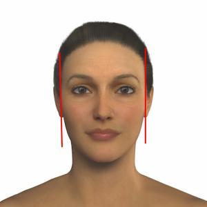 ヒアルロン酸を入れると顔が大きくなる?