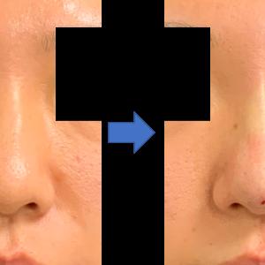 鼻筋を細くしたい、の選択肢。