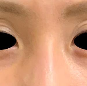 目の上のくぼみ治療 後編