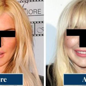ヒアルロン酸を入れると顔が大きくなりますか?