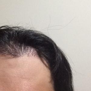韓国自毛植毛手術後3ヶ月と28日目