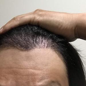 韓国自毛植毛手術後4ヶ月と1日目