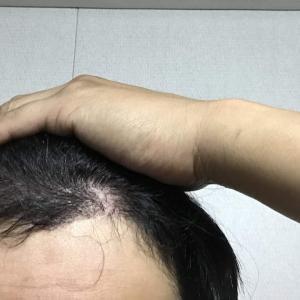韓国自毛植毛手術後4ヶ月と24日ぐらい