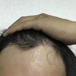 韓国自毛植毛手術後4ヶ月と25日目