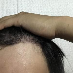 韓国自毛植毛手術後4ヶ月と26日目