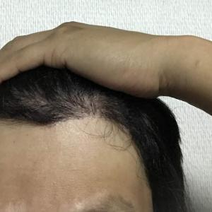 韓国自毛植毛手術後4ヶ月と27日目