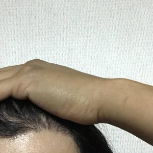 韓国自毛植毛手術後4ヶ月と28日目