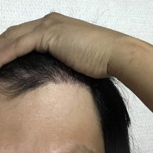 韓国自毛植毛手術後4ヶ月と29日目