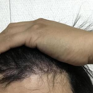 韓国自毛植毛手術後4ヶ月と30日目
