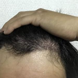 韓国自毛植毛手術後5ヶ月目記念日!