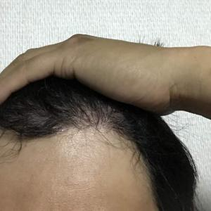 韓国自毛植毛手術後5ヶ月と1日目