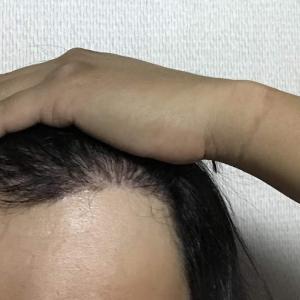 韓国自毛植毛手術後5ヶ月と2日目