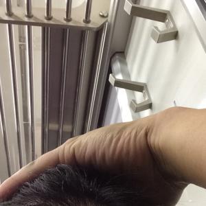 韓国自毛植毛手術後5ヶ月と3日目