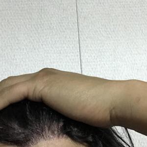 韓国自毛植毛手術後5ヶ月と4日目