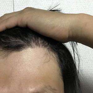 韓国自毛植毛手術後5ヶ月と5日目