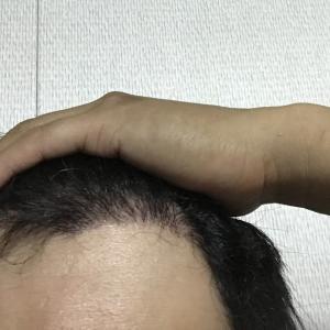 韓国自毛植毛手術後5ヶ月と6日目