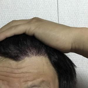韓国自毛植毛手術後5ヶ月と7日目