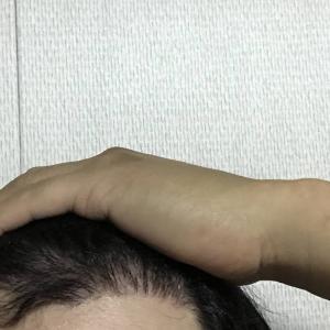 韓国自毛植毛手術後5ヶ月と8日目