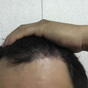 韓国自毛植毛手術後5ヶ月と9日目