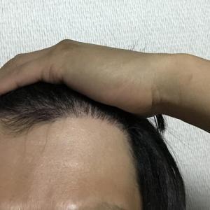 韓国自毛植毛手術後5ヶ月と10日目
